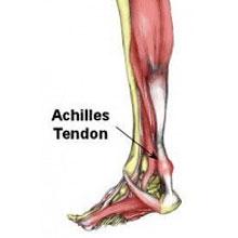 achilles-tendonitis220